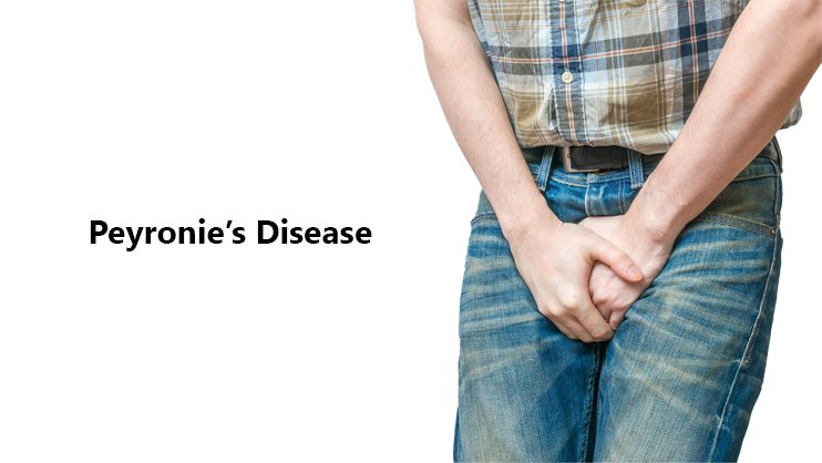 Treating Your Peyronie's Disease With a Home Natural Treatment