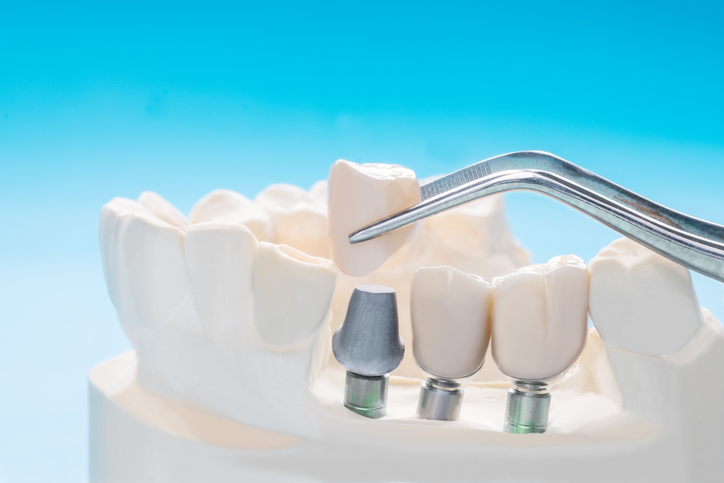 What Dental Implants Can Do For You